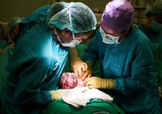 cesarean section surgery: c-section